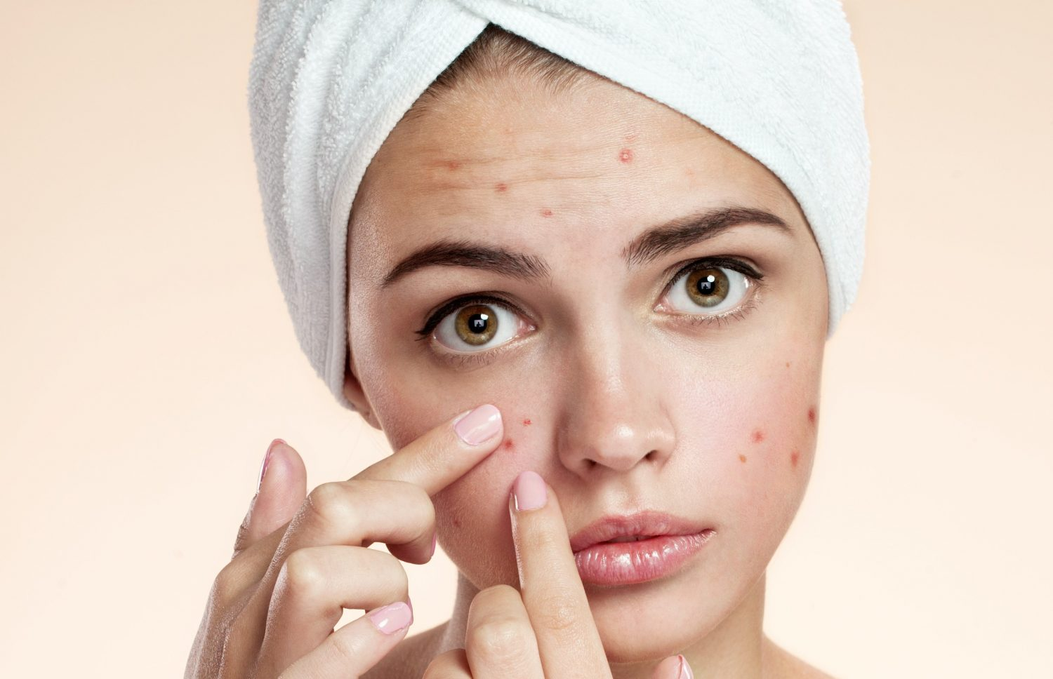 Start Your Journey To Clearer Skin At SDS Rejuvenate MediSpa